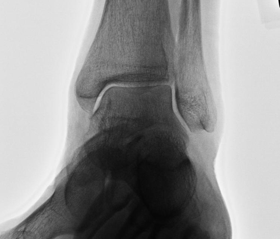 Broken Ankle or a Sprain: How do you Know? - Beacon
