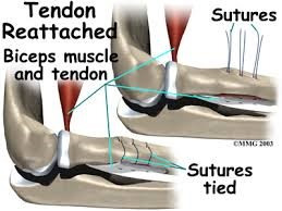 Bicep Tendon Reattached