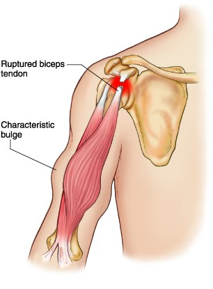 Bulging Bicep after Ruptured Tendon