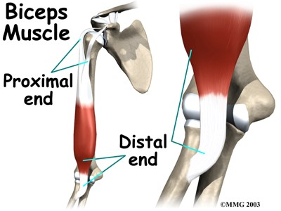 Distal Repair to Biceps Tendon Rupture