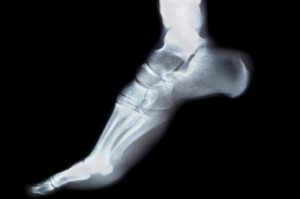 Recovery Guide to Foot & Ankle Surgery - Beacon Orthopaedics