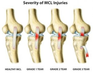 MCL Tear Rendering-Severity