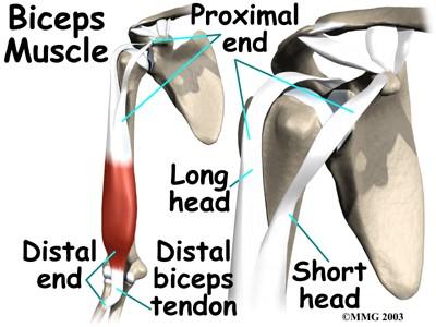 Proximal Repair to Biceps Tendon Rupture