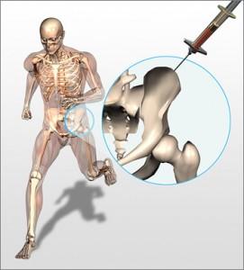 Regenexx Bone Marrow