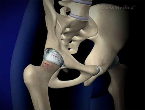 Osteoarthritis in the femur can spread to other regions of the hip joint.