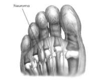 foot (3)