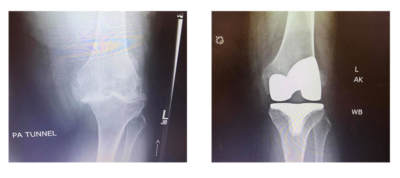 Before and After Knee Surgery