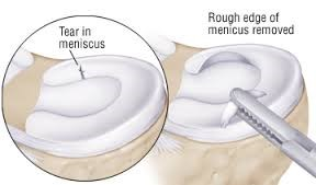 Meniscus Tear in the Knee