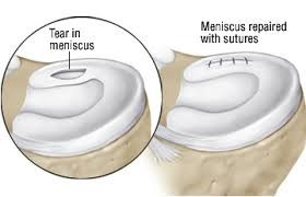 Meniscus Surgery Diagram