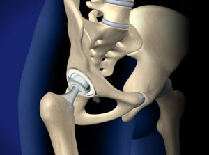 Total Hip Replacement-Anterior