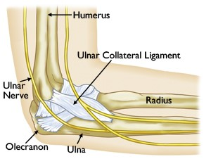 ucl injuries of the elbow beacon orthopaedics sports. Black Bedroom Furniture Sets. Home Design Ideas