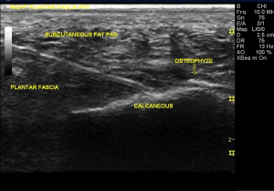 Percutaneous Needle Tenotomy Ultrasound